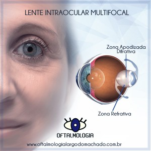 ed3426d6d7 lente-intraocular-multifocal-oftalmologia-largo-do-machado